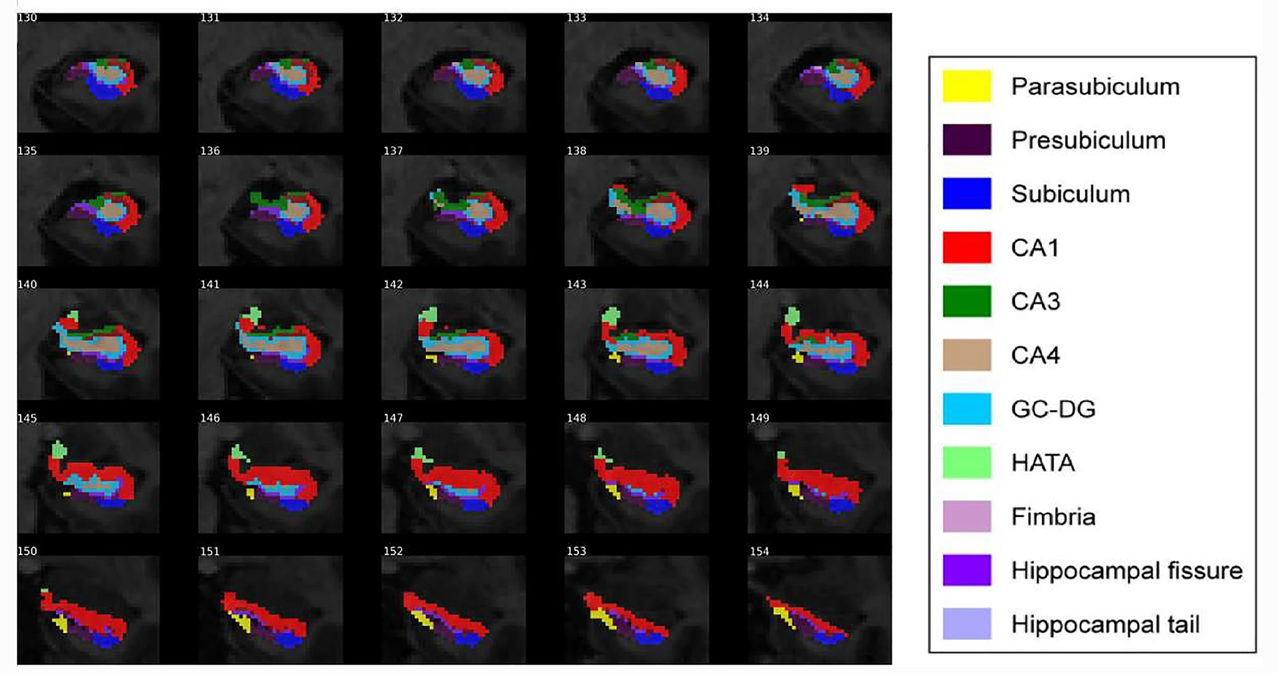 BDNF gene variants and hippocampal subfields